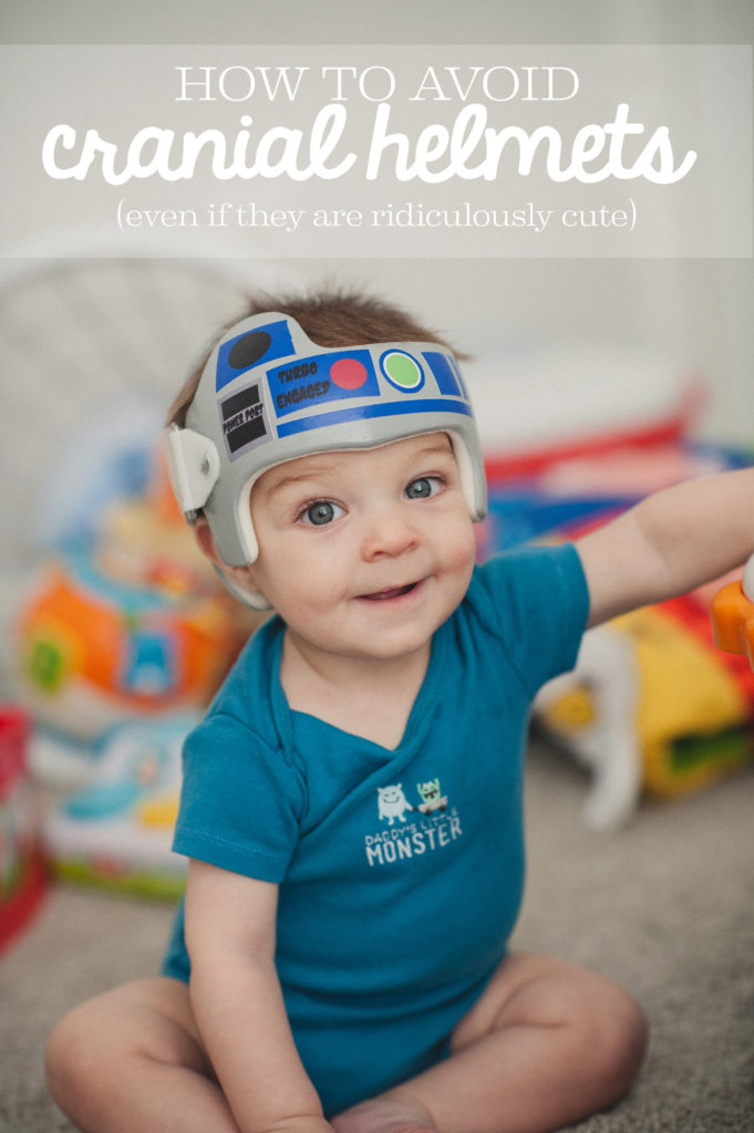 Baby with Star Wars themed cranial helmet doc band.